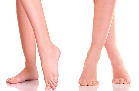 Flat feet – why legs hurt and how to deal with it